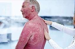 Благодаря Psoritin происходит подавление аутоиммунных реакций.