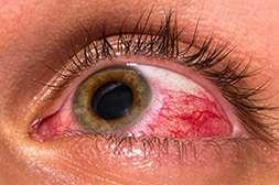 Благодаря Crystal Eyes предотвращается развитие серьёзных патологий зрения.