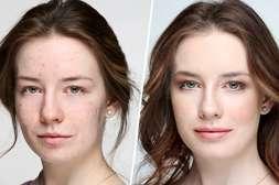 Средство Bioaqua Anti Acne нормализует секрецию сальных желёз с первого применения.