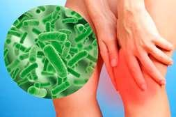 Состав Имостеон убивает вредоносные бактерии.