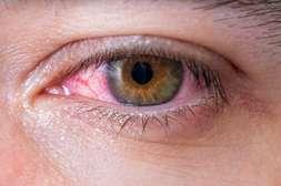 Польза Визоплекса в снятии распространенных глазных аномалий.